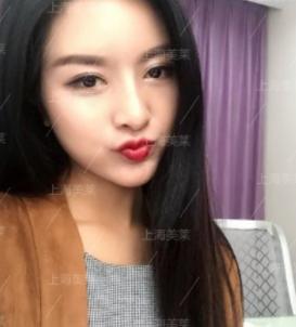 上海美莱案例刘奕歌