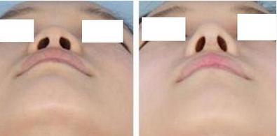 手术延长鼻小柱