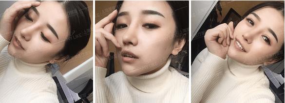 上海美莱鼻部整形案例