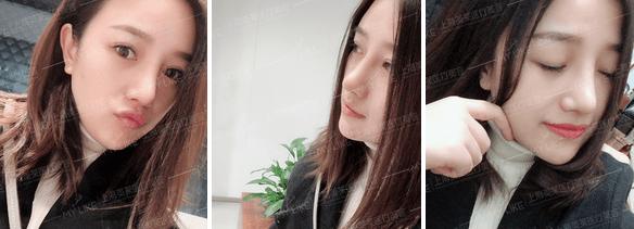 美莱卢建韩式小翘鼻案例