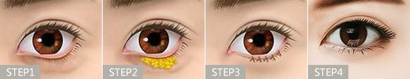 韩式细致祛眼袋