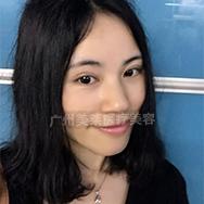 美莱祛斑案例华菲