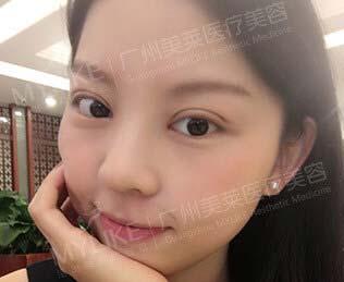 韩式明眸翘睫大眼术