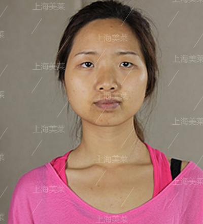 上海美莱医院眼部整形