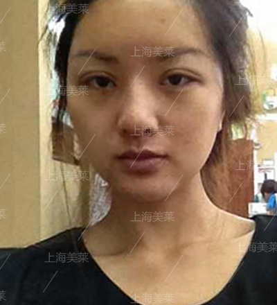 上海美莱做双眼皮