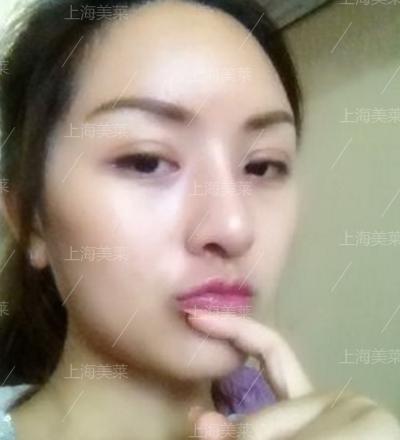 美莱眼部整形+何祥龙