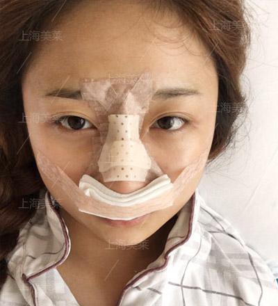上海美莱卢建鼻部整形
