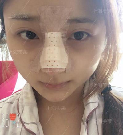 上海美莱鼻部整形手术