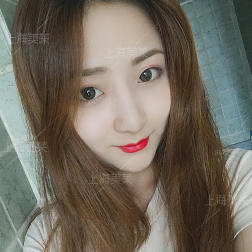 上海美莱韩式小翘鼻