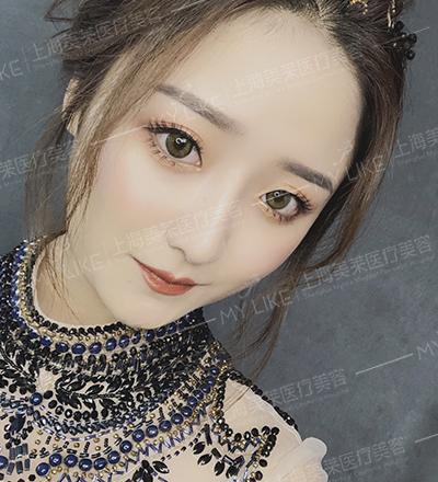 上海美莱整形隆鼻手术