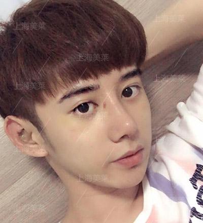 李保楷+上海美莱自体软骨隆鼻