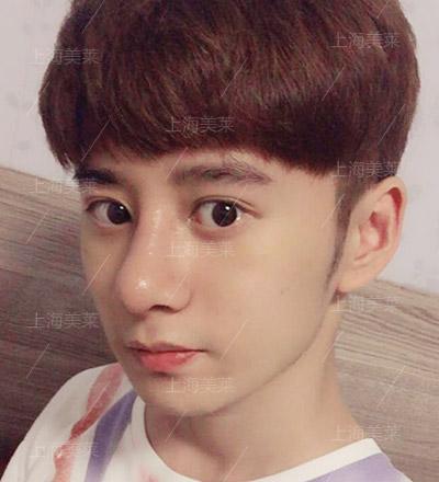 李保楷+上海美莱自体软骨隆鼻手术