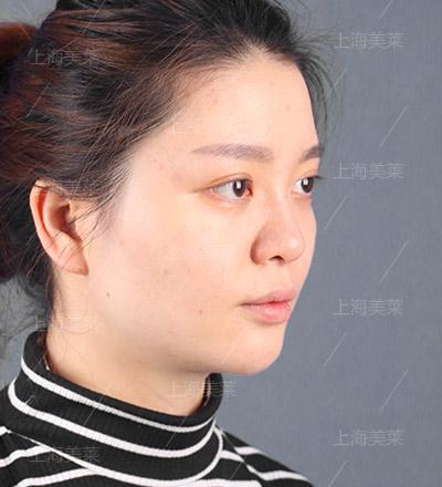 线雕隆鼻手术