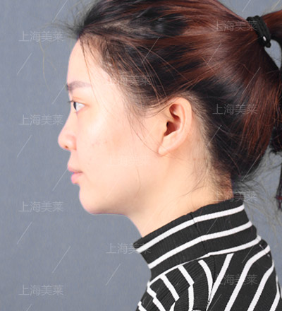 美莱线雕隆鼻手术