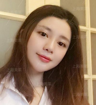 上海美莱整形医院线雕隆鼻手术