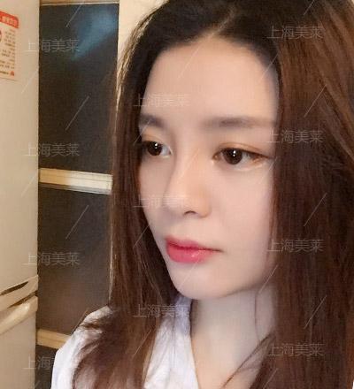 上海美莱线雕隆鼻手术