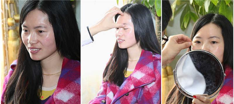 慧儿双眼皮整形+桂林美莱眼部案例