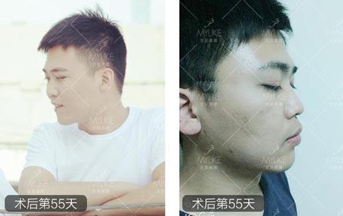 双眼皮案例小TaoT