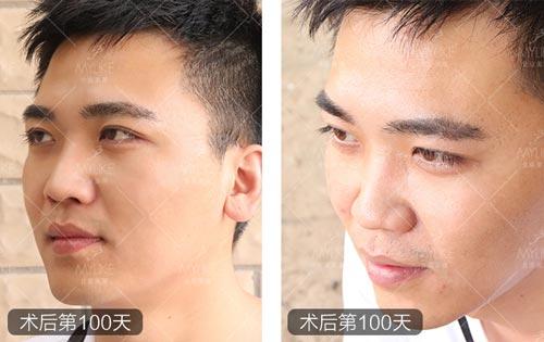 美莱双眼皮案例小TaoT