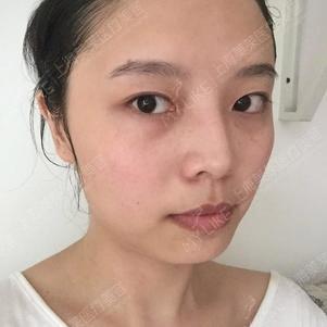 Yuki手术前