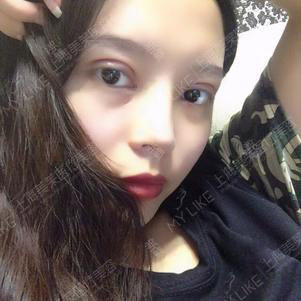 Yuki手术后