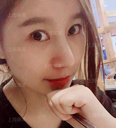 小菲鼻综合整形