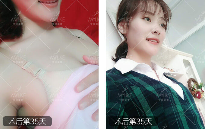 雨后蔷薇恋综合美胸整形+北京美莱胸部案例