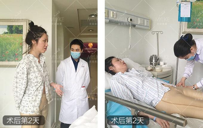 小岳岳呀吸脂抽脂减肥+北京美莱瘦腿小时案例影响有不塑身衣24穿大腿图片