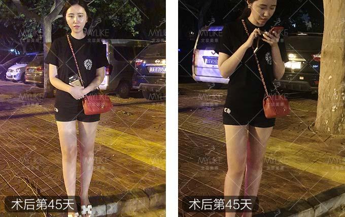 小岳岳呀大腿瘦腿减肥+北京美莱案例吸脂抽脂营养素减肥内润道吗肠?图片