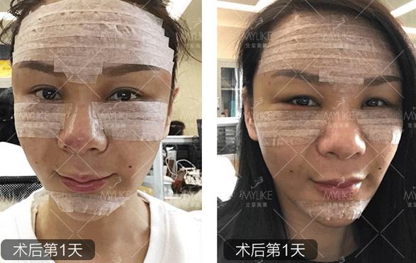 自体脂肪全脸填充+北京美莱吸脂案例