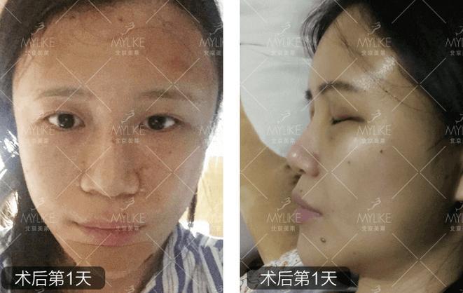 自体脂肪丰额头+北京美莱吸脂案例