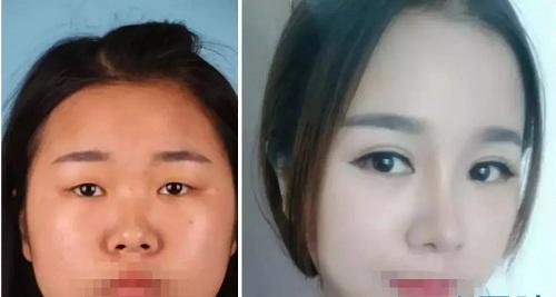 郑州美莱做双眼皮怎么样?真实手术案例效果为你呈现