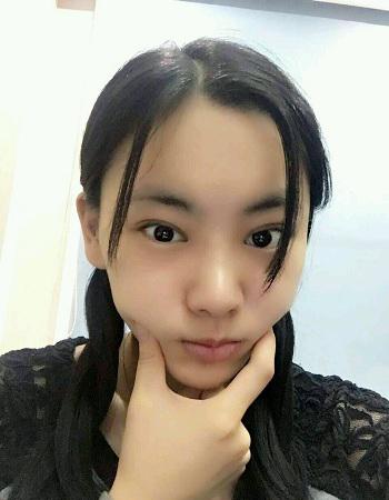 郑州美莱整形医院案例刘雨婷