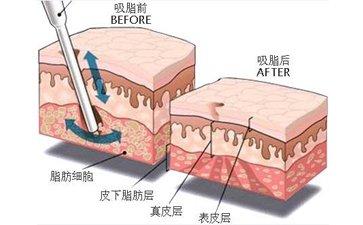 广州哪家机构吸脂减肥比较好