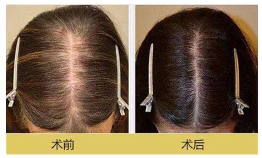 周刚毛发种植案例