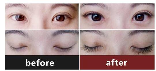 睫毛种植案例图