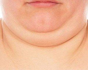 面部吸脂减肥后可以去双下巴吗