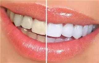 牙齿做冷光美白对身体有坏处吗