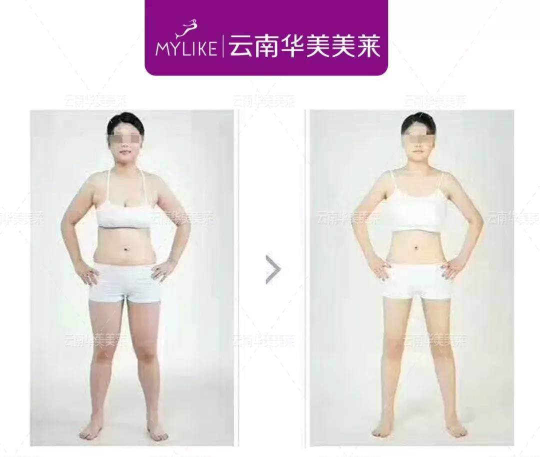 吸脂减肥是优势有哪些