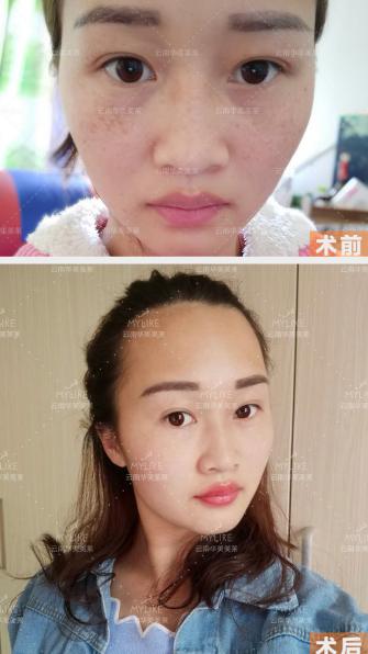 2018华美美莱·李大铁祛斑