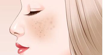 广州美莱激光祛雀斑会很痛吗