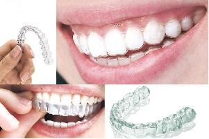 矫正牙齿的注意事项有哪些