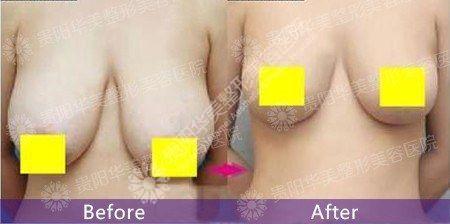 华美乳房下垂矫正的效果怎么样