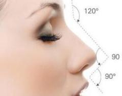 深圳注射玻尿酸隆鼻多少价位呢