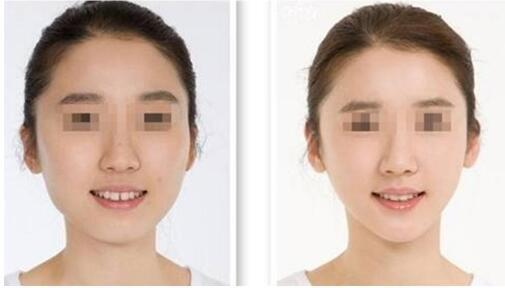 改脸型案例