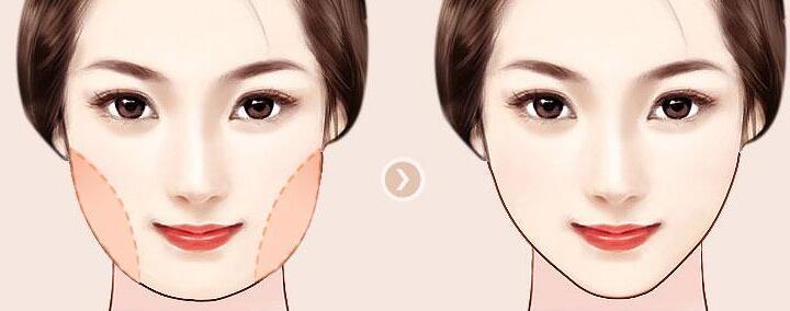 抽脂瘦脸会不会留下后遗症