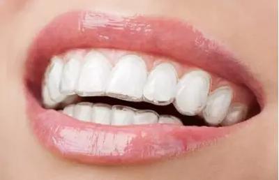 佛山美莱烤瓷牙有哪几种