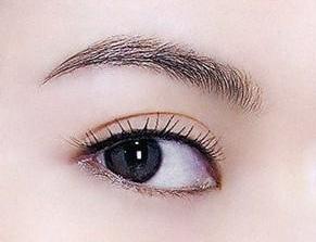天津美莱做哪种双眼皮恢复快