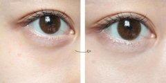 重庆美莱祛除黑眼圈有哪