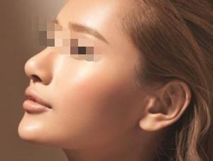 假体隆鼻手术过程会不会很痛呢